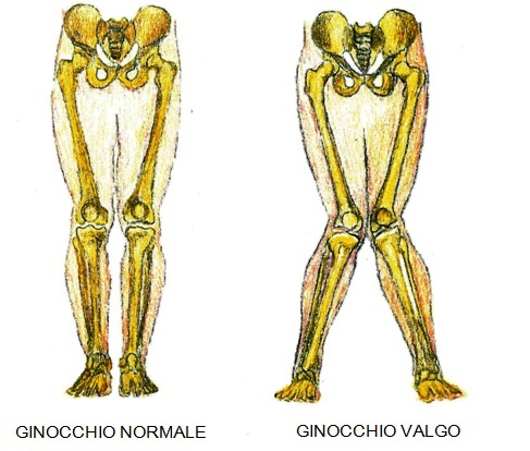 ginocchio-valgo